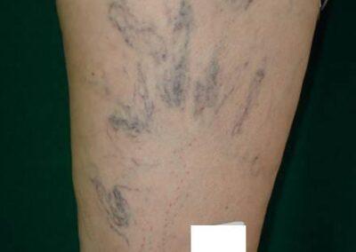Esclerosis 2 (Antes)