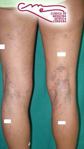Esclerosis 1 (Antes)